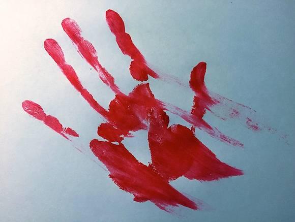 В Саратове обнаружили истекающего кровью мужчину, до больницы его довезти не успели