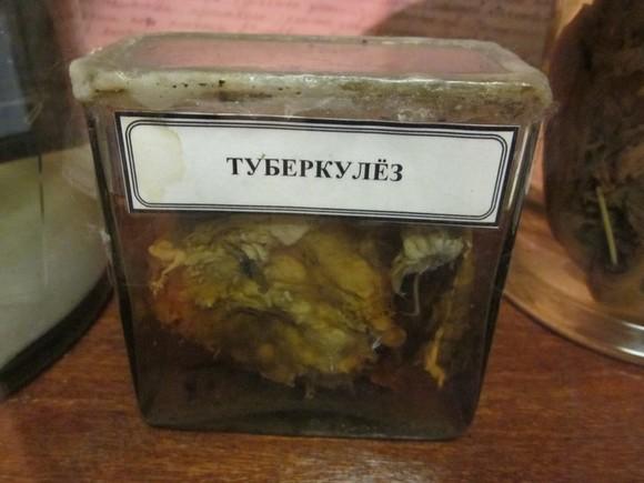 В Литве учительница заразила туберкулезом 77 школьников