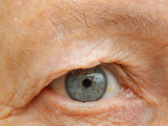 Социальные сети способствуют преждевременному старению