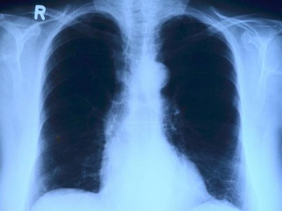 Ученые перечислили опасные признаки рака легких