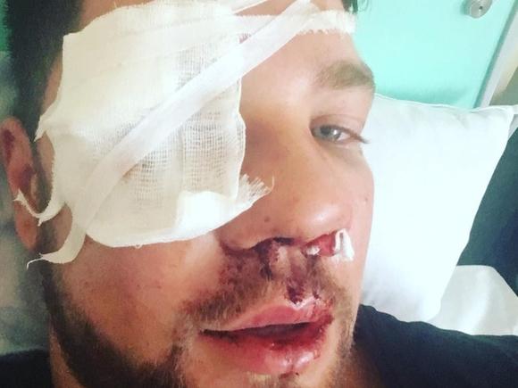 «Думал, что фейк»: зверски избитый дагестанцами в метро парень оценил «шутку» Нурмагомедова