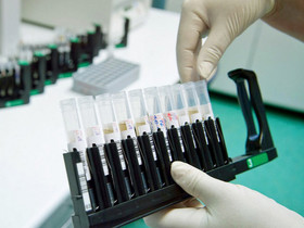 Проект «Предсказание»— в ожидании вирусной пандемии