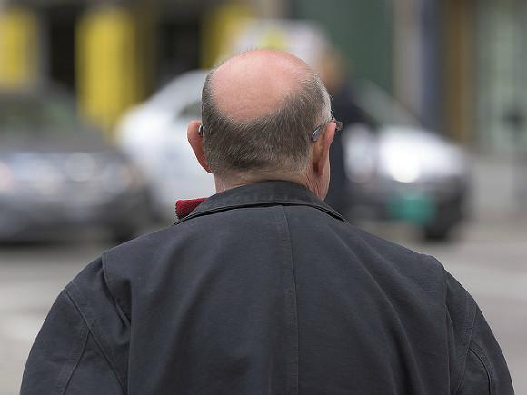 Диета от облысения: ученые составили спецменю для мужчин